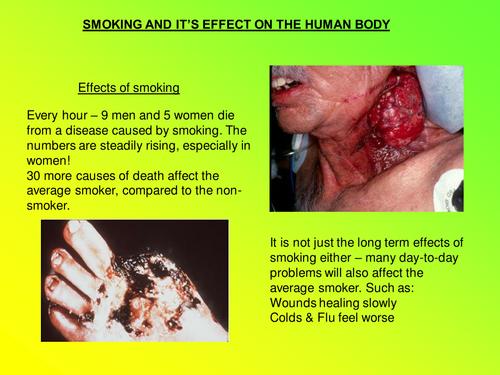 KS3/4 Smoking Powerpoint Presentation