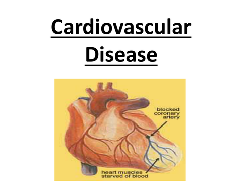 AS Biology - Cardiovacular Disease ppt