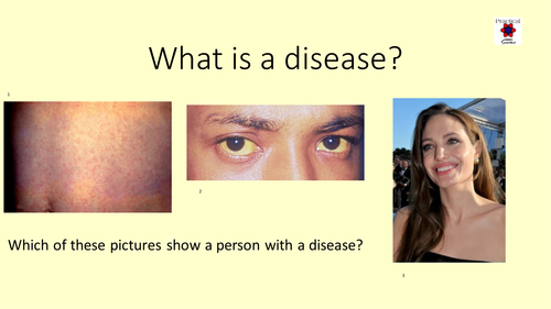 Health and Disease Resources GCSE2016