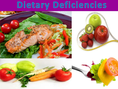 Dietary deficiency diseases: Presentation and activities for GCSE, A Level & similar Biology courses