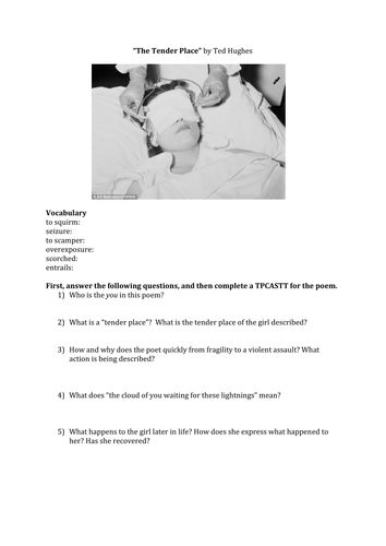 The Tender Place by Ted Hughes Poetry Analysis Worksheet