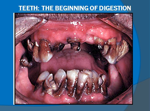 Digestive System Notes-Teeth the Beginning of Digestion Powerpoint Presentation