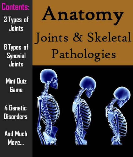 Joints Pathology Of The Skeletal System Powerpoint Worksheet By