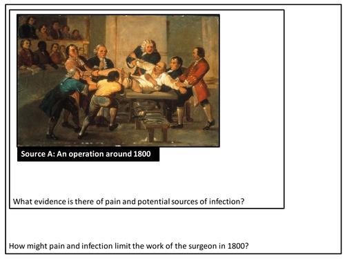 Anesthetics - Pain Relief