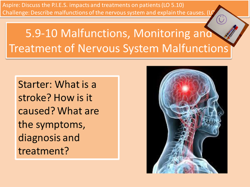 5.9-10 (1 of 5) Brain Malfunctions, Monitoring and Treatment Unit 4 Cambridge Technical Health