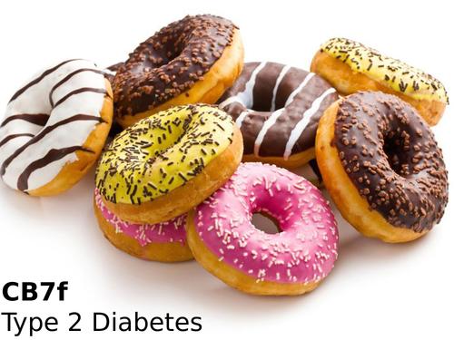 Edexcel CB7f Type 2 Diabetes
