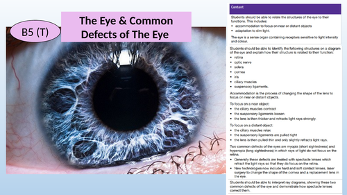 AQA GCSE 9-1 The Eye and Problems/Defects of the Eye (2-3 lessons)