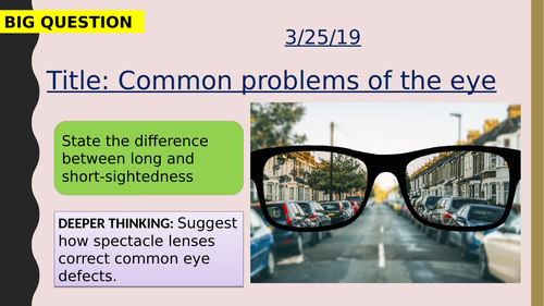 AQA new specification-Common problems of the eye-B10.6
