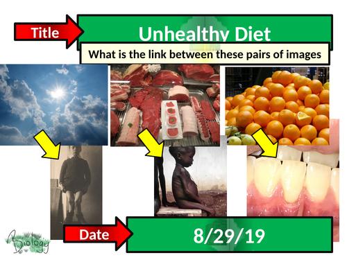Unhealthy Diet - Activate