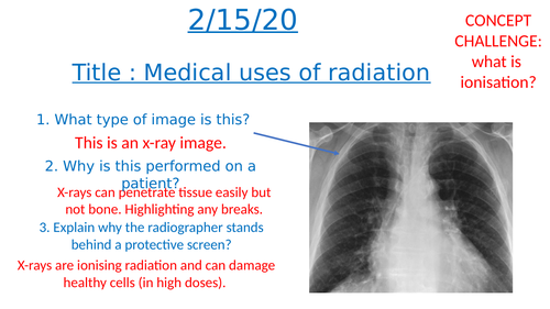 Medical uses of radiation