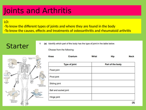 Anatomy and Physiology: Joints and Arthritis