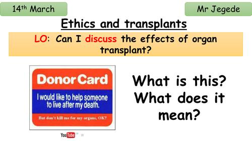 Ethics and organ transplant